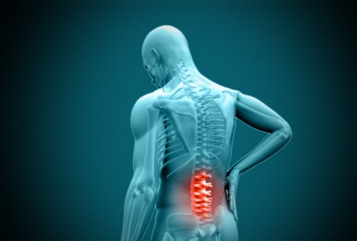Back Injury in a Maryland Workers Compensation Claim